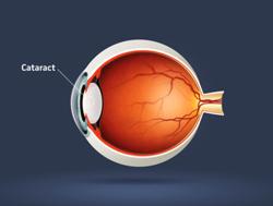 cataract250